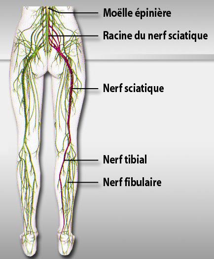 nerf-sciatique