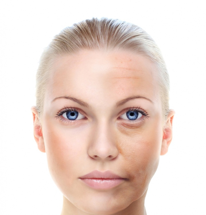vieillissement-du-visage-54_m